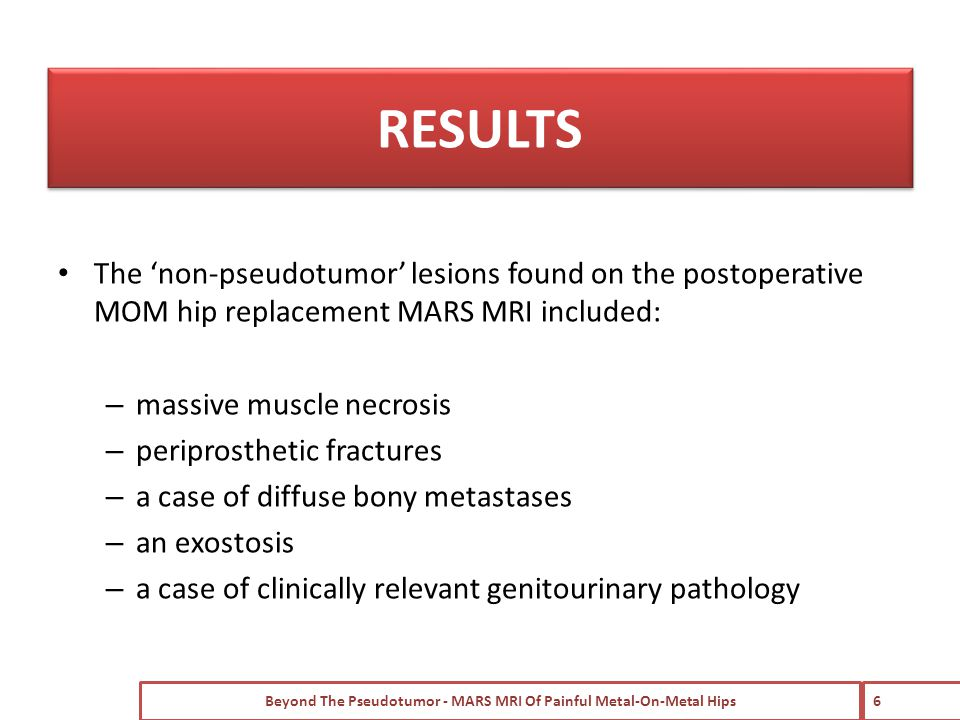 The 'non-pseudotumor' lesions found on the postoperative MOM hip replacement MARS MRI included: – massive muscle necrosis – periprosthetic fractures – a case of diffuse bony metastases – an exostosis – a case of clinically relevant genitourinary pathology Beyond The Pseudotumor - MARS MRI Of Painful Metal-On-Metal Hips 6 RESULTS