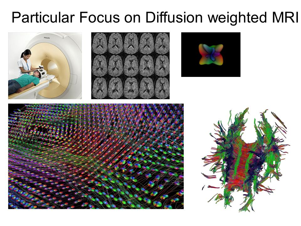 Particular Focus on Diffusion weighted MRI