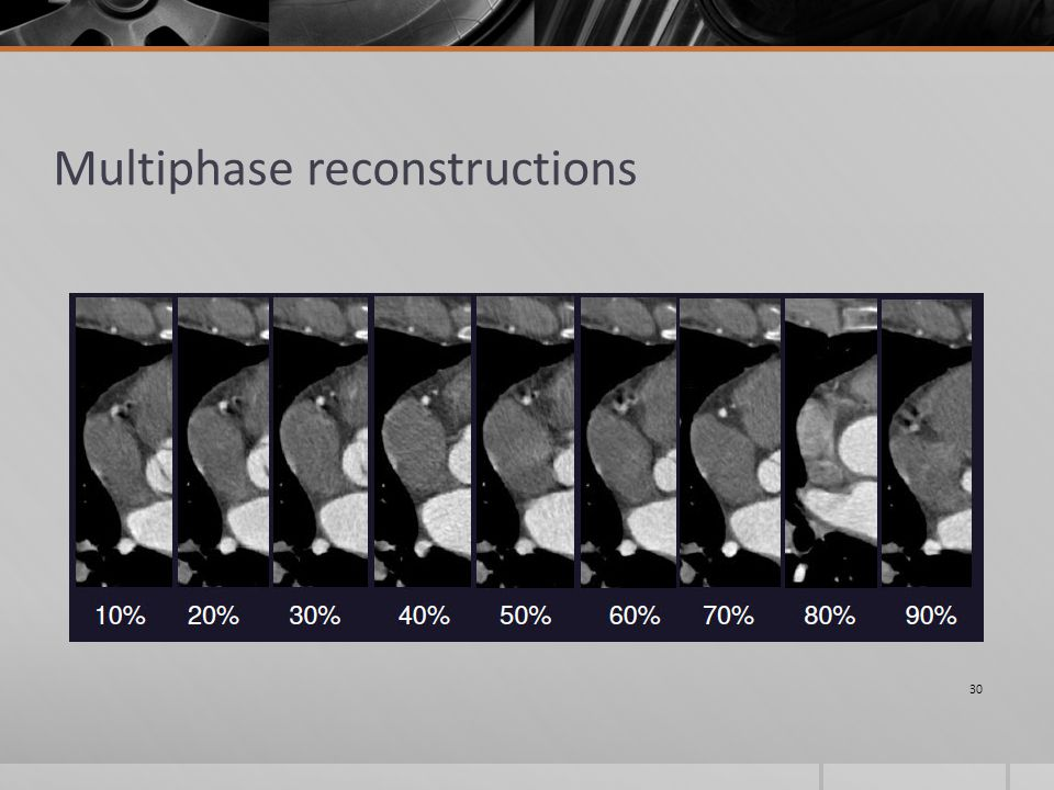 Multiphase reconstructions 30