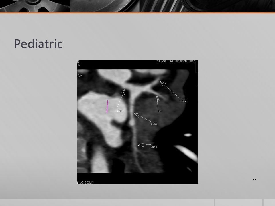 Pediatric 55