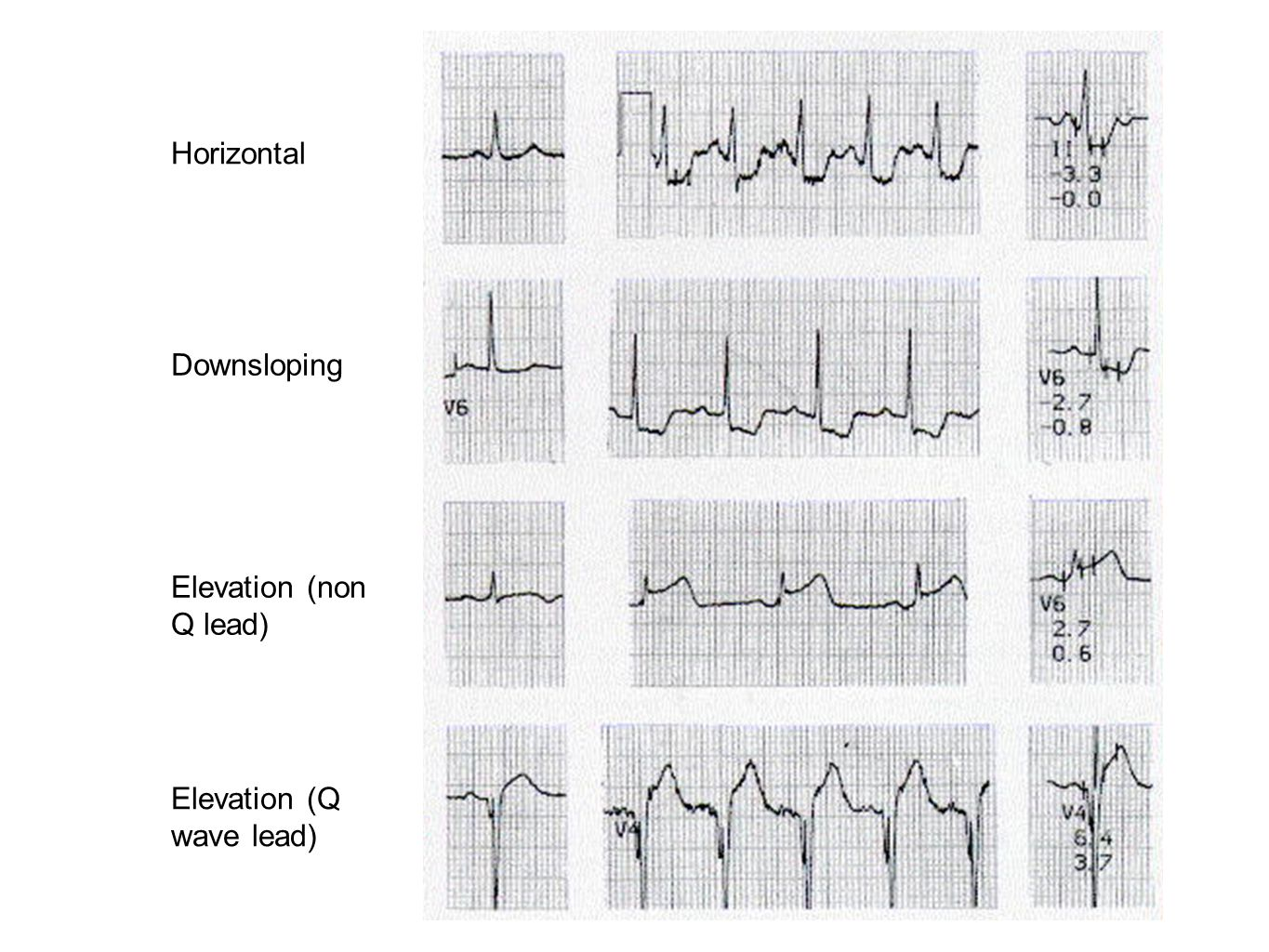 Horizontal Downsloping Elevation (non Q lead) Elevation (Q wave lead)
