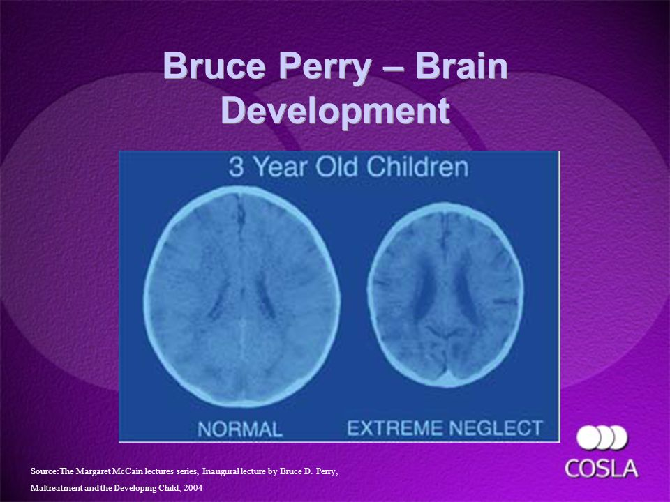 Bruce Perry – Brain Development Source:The Margaret McCain lectures series, Inaugural lecture by Bruce D.