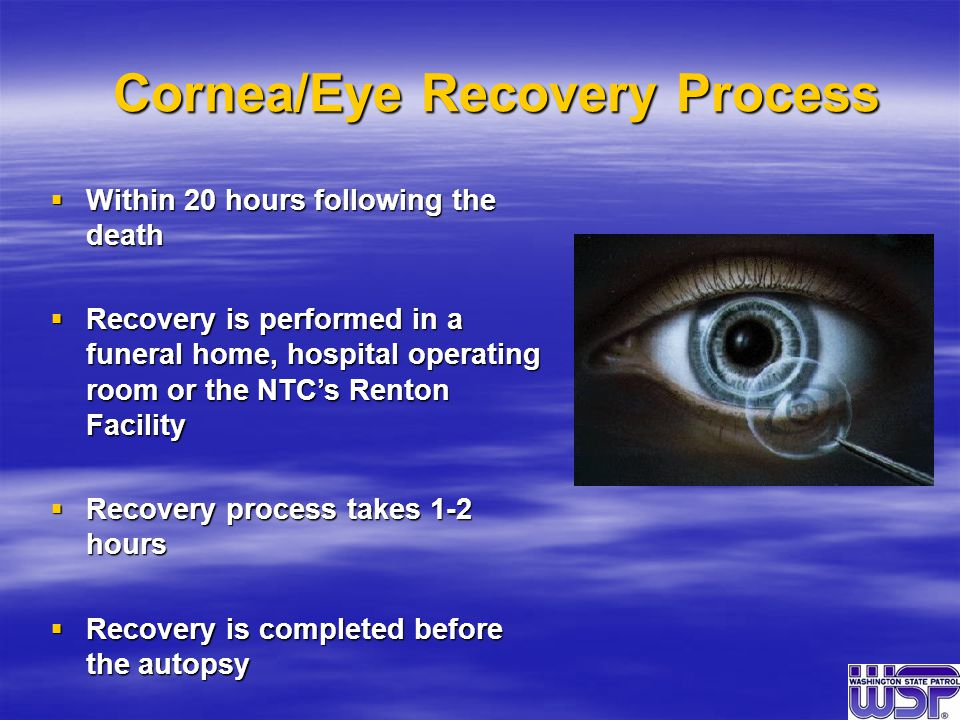 Cornea/Eye Recovery Process  Within 20 hours following the death  Recovery is performed in a funeral home, hospital operating room or the NTC's Renton Facility  Recovery process takes 1-2 hours  Recovery is completed before the autopsy
