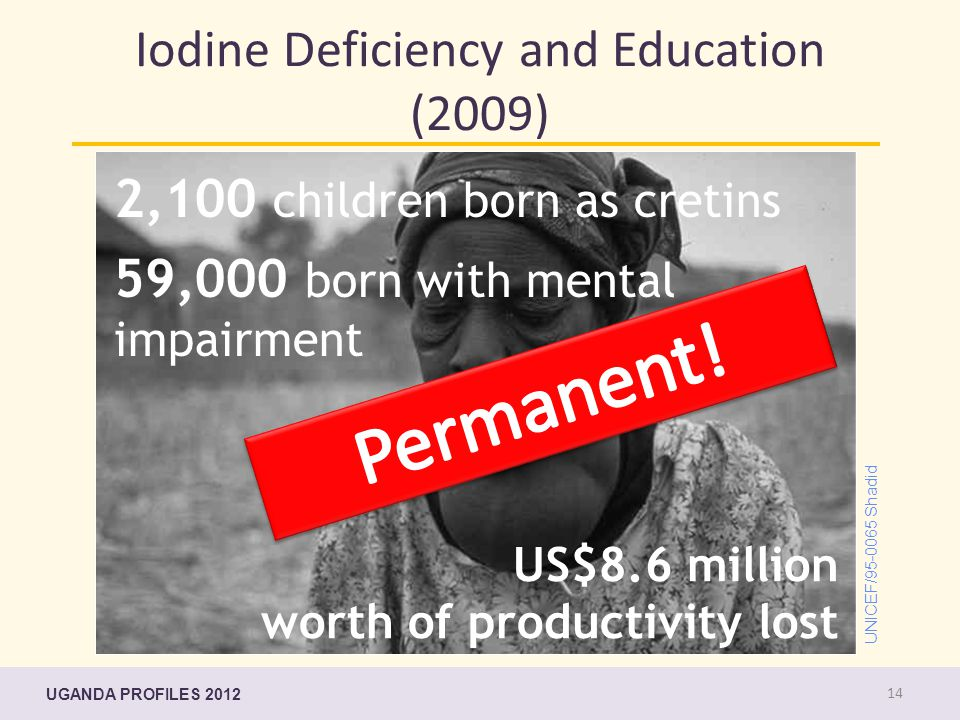 UNICEF/95-0065 Shadid Iodine Deficiency and Education (2009) 2,100 children born as cretins 59,000 born with mental impairment US$8.6 million worth of productivity lost UGANDA PROFILES 2012 14