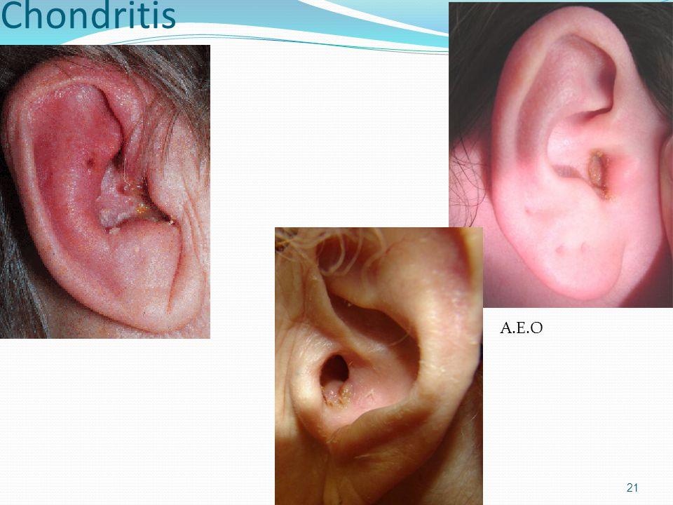 Chondritis 21 A.E.O