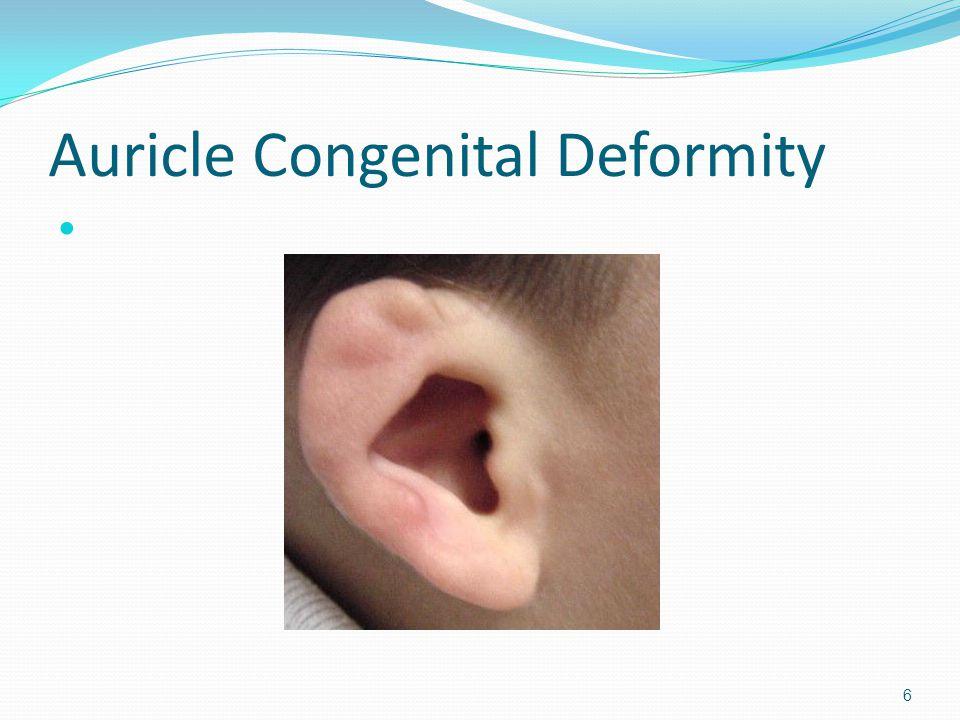 Auricle Congenital Deformity 6