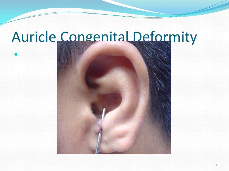 Auricle Congenital Deformity 7