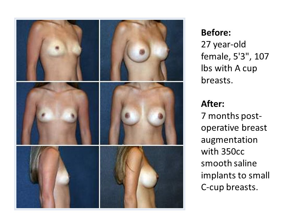 Before: 27 year-old female, 5 3 , 107 lbs with A cup breasts.