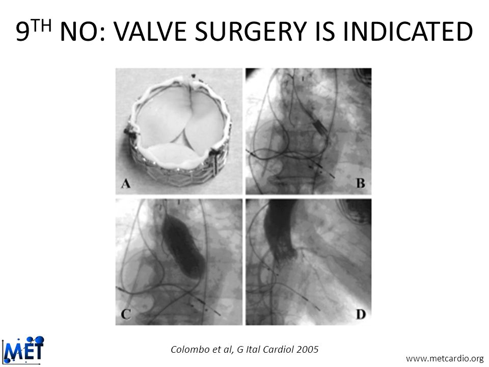 www.metcardio.org 9 TH NO: VALVE SURGERY IS INDICATED Colombo et al, G Ital Cardiol 2005