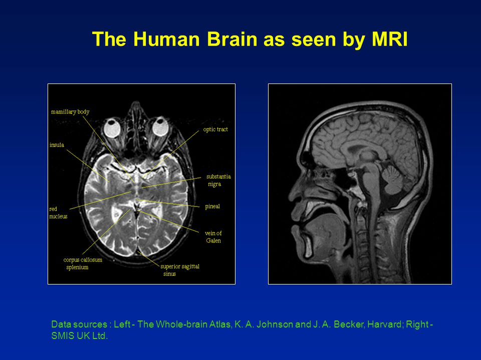 The Human Brain as seen by MRI Data sources : Left - The Whole-brain Atlas, K.