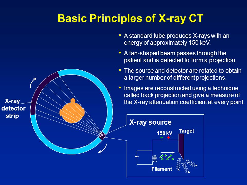 Basic Principles of X-ray CT A standard tube produces X-rays with an energy of approximately 150 keV.