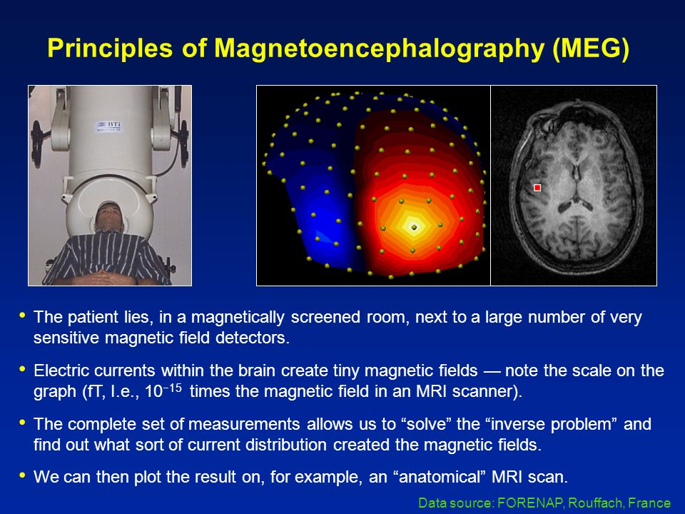 Principles of Magnetoencephalography (MEG) The patient lies, in a magnetically screened room, next to a large number of very sensitive magnetic field detectors.