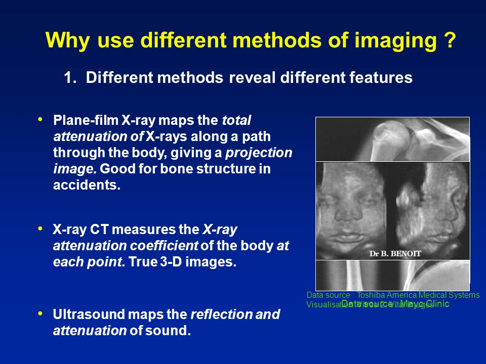 Data source :Toshiba America Medical Systems Visualisation :Vitrea 2, Vital Images Data source : Mayo Clinic Why use different methods of imaging .