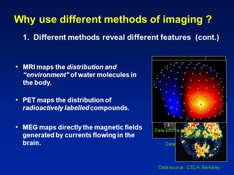 Data source : SMIS Ltd Why use different methods of imaging .