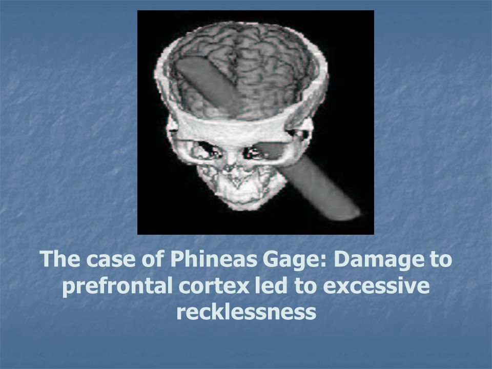 The case of Phineas Gage: Damage to prefrontal cortex led to excessive recklessness