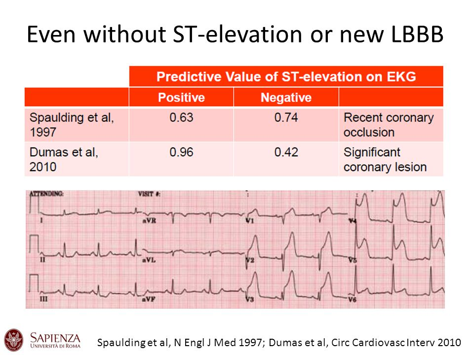 Even without ST-elevation or new LBBB Spaulding et al, N Engl J Med 1997; Dumas et al, Circ Cardiovasc Interv 2010