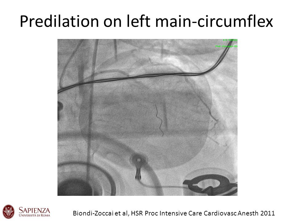 Predilation on left main-circumflex Biondi-Zoccai et al, HSR Proc Intensive Care Cardiovasc Anesth 2011