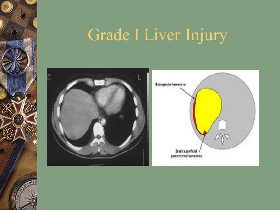 Grade I Liver Injury