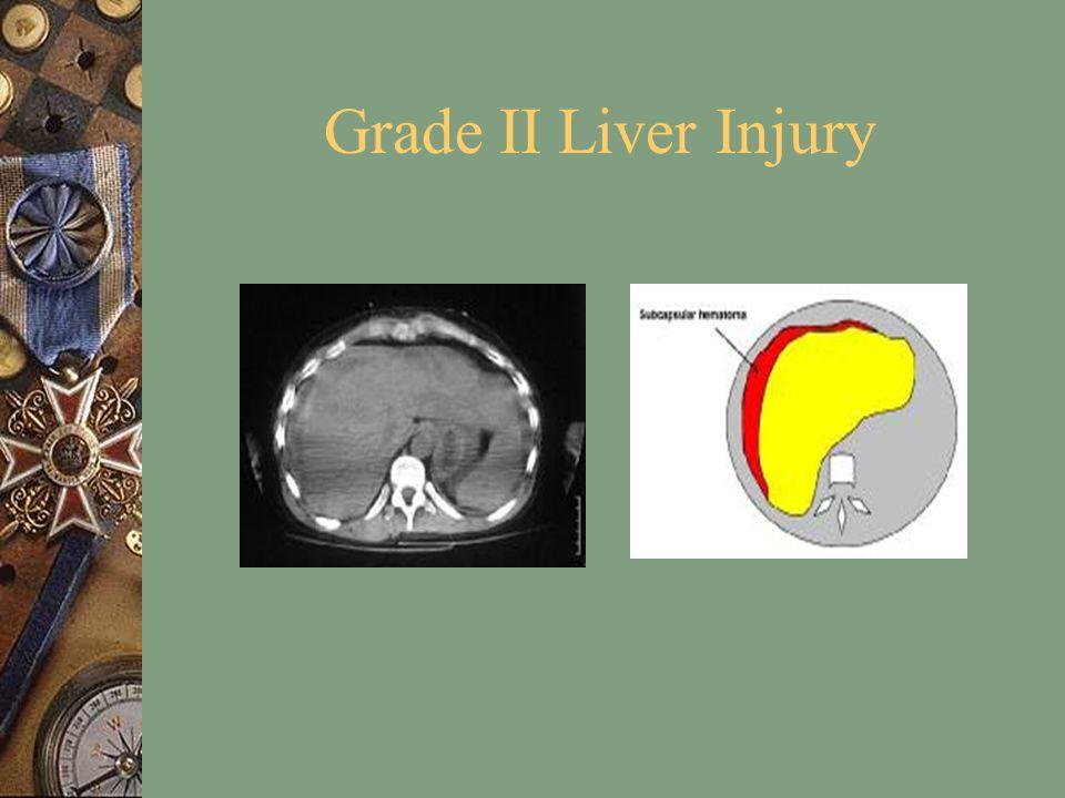 Grade II Liver Injury