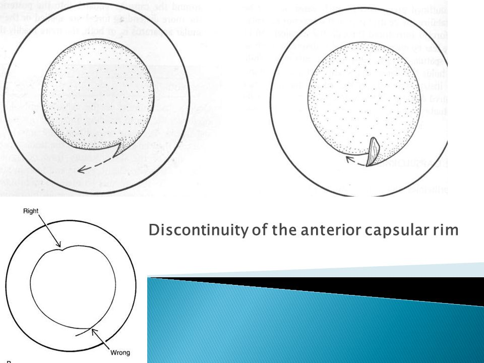Discontinuity of the anterior capsular rim