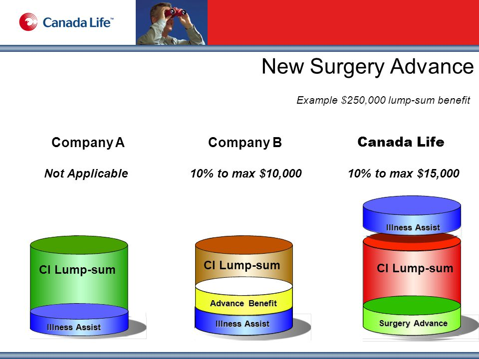 New Surgery Advance Example $250,000 lump-sum benefit Canada Life Company ACompany B 10% to max $15,00010% to max $10,000Not Applicable CI Lump-sum Illness Assist CI Lump-sum Surgery Advance CI Lump-sum Illness Assist Advance Benefit