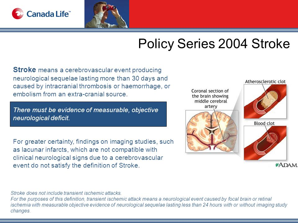 Policy Series 2004 Stroke Stroke means a cerebrovascular event producing neurological sequelae lasting more than 30 days and caused by intracranial thrombosis or haemorrhage, or embolism from an extra-cranial source.