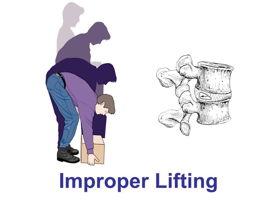 Improper Lifting