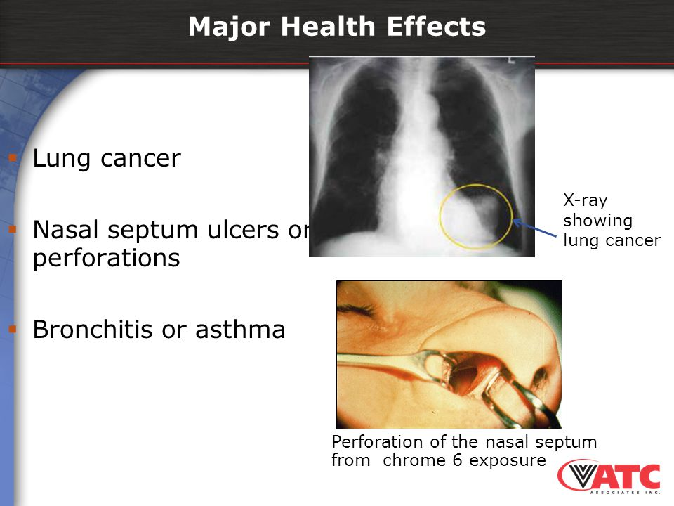 Major Health Effects  Lung cancer  Nasal septum ulcers or perforations  Bronchitis or asthma Perforation of the nasal septum from chrome 6 exposure
