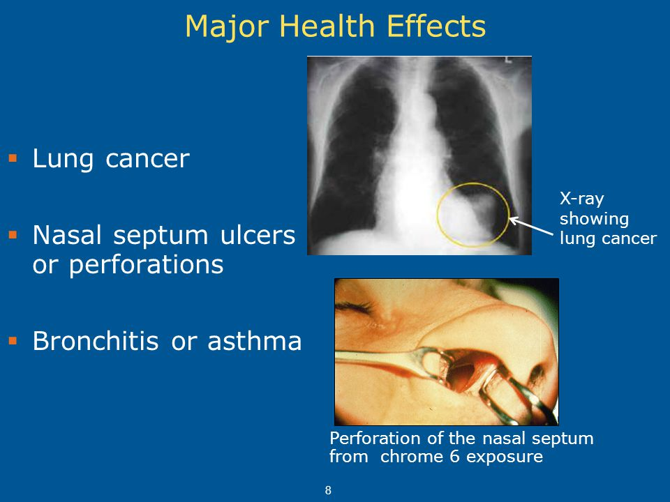 8 Major Health Effects  Lung cancer  Nasal septum ulcers or perforations  Bronchitis or asthma Perforation of the nasal septum from chrome 6 exposu
