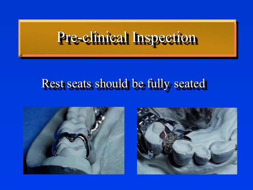Pre-clinical Inspection Rest seats should be fully seated