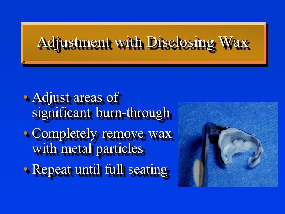 Adjustment with Disclosing Wax Adjust areas of significant burn-throughAdjust areas of significant burn-through Completely remove wax with metal particlesCompletely remove wax with metal particles Repeat until full seatingRepeat until full seating Adjust areas of significant burn-throughAdjust areas of significant burn-through Completely remove wax with metal particlesCompletely remove wax with metal particles Repeat until full seatingRepeat until full seating