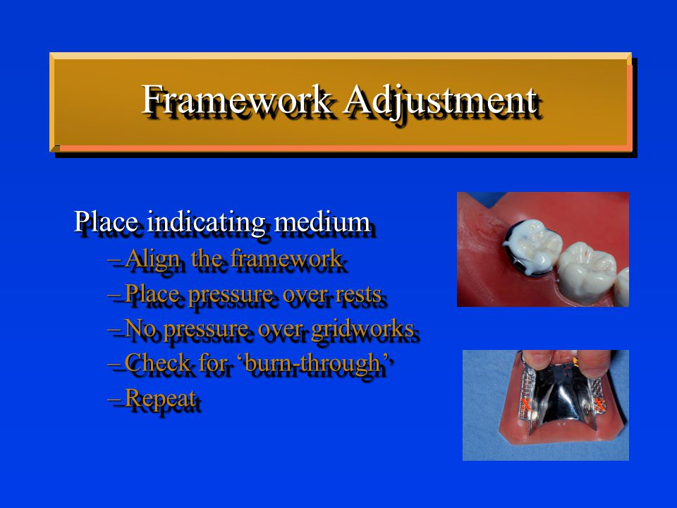 Framework Adjustment Place indicating medium –Align the framework –Place pressure over rests –No pressure over gridworks –Check for 'burn-through' –Repeat Place indicating medium –Align the framework –Place pressure over rests –No pressure over gridworks –Check for 'burn-through' –Repeat x x x x