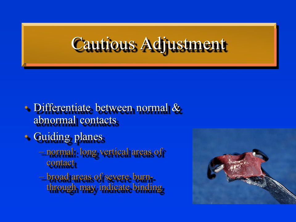 Cautious Adjustment Differentiate between normal & abnormal contactsDifferentiate between normal & abnormal contacts Guiding planesGuiding planes –normal: long vertical areas of contact –broad areas of severe burn- through may indicate binding Differentiate between normal & abnormal contactsDifferentiate between normal & abnormal contacts Guiding planesGuiding planes –normal: long vertical areas of contact –broad areas of severe burn- through may indicate binding