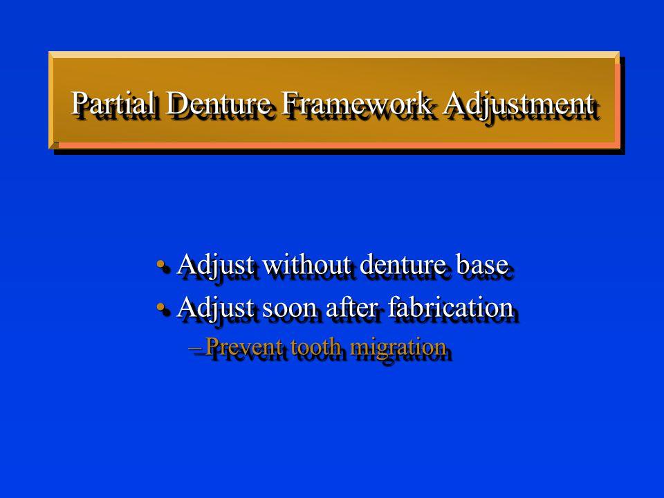 Framework Adjustment PolishPolish –Carborundum points & wheels –Final polish - Shofu brown & green points –Use care.