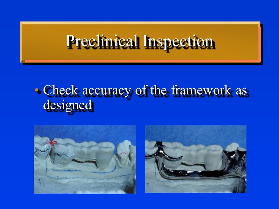 Preclinical Inspection Framework should fit master castFramework should fit master cast –If it does not, probably will not fit intraorally Framework should fit master castFramework should fit master cast –If it does not, probably will not fit intraorally