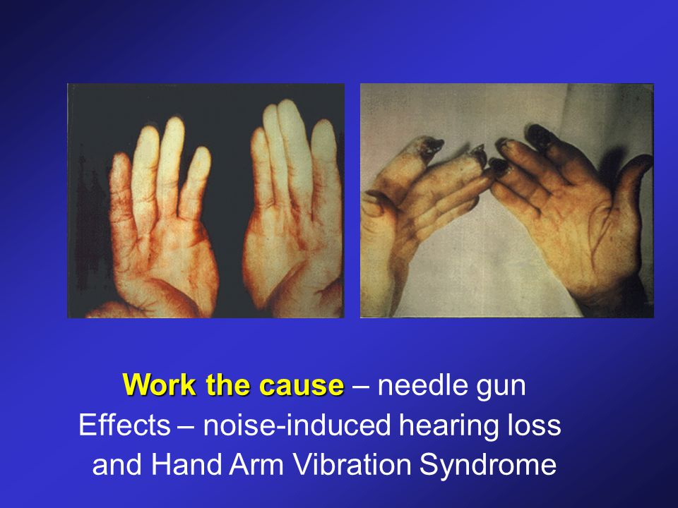 Work the cause Work the cause – needle gun Effects – noise-induced hearing loss and Hand Arm Vibration Syndrome