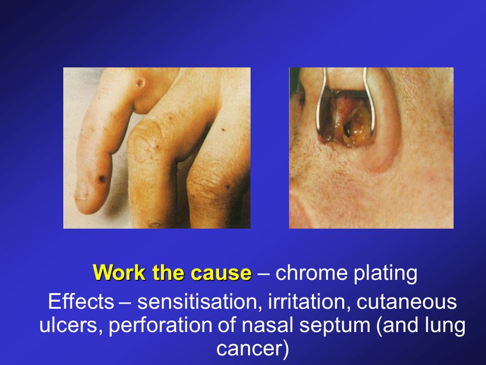 Work the cause Work the cause – chrome plating Effects – sensitisation, irritation, cutaneous ulcers, perforation of nasal septum (and lung cancer)