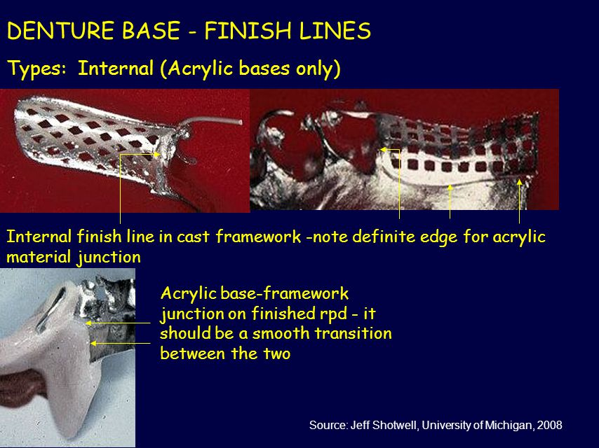 DENTURE BASE - FINISH LINES Types: Internal (Acrylic bases only) Internal finish line in cast framework -note definite edge for acrylic material junct