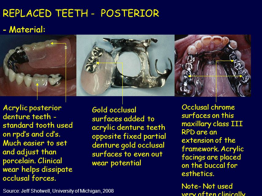 REPLACED TEETH - POSTERIOR - Material: Acrylic posterior denture teeth - standard tooth used on rpd's and cd's. Much easier to set and adjust than por