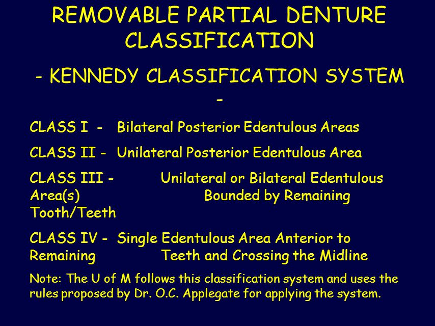 REMOVABLE PARTIAL DENTURE CLASSIFICATION - KENNEDY CLASSIFICATION SYSTEM - CLASS I - Bilateral Posterior Edentulous Areas CLASS II - Unilateral Poster
