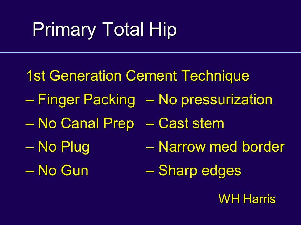 Primary Total Hip 1st Generation Cement Technique – Finger Packing – No pressurization – No Canal Prep– Cast stem – No Plug – Narrow med border – No G