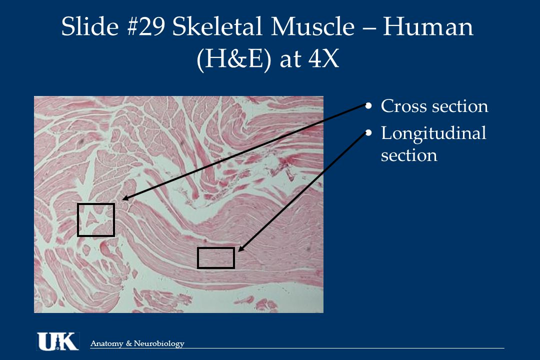 Slide #29 Skeletal Muscle – Human (H&E) at 4X Cross section Longitudinal section