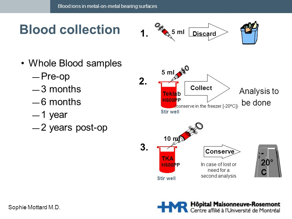 Blood ions in metal-on-metal bearing surfaces Sophie Mottard M.D. Blood collection Whole Blood samples — Pre-op — 3 months — 6 months — 1 year — 2 yea