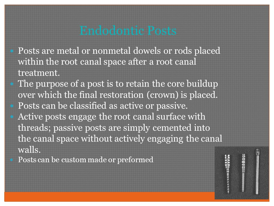 Endodontic Posts Posts are metal or nonmetal dowels or rods placed within the root canal space after a root canal treatment.