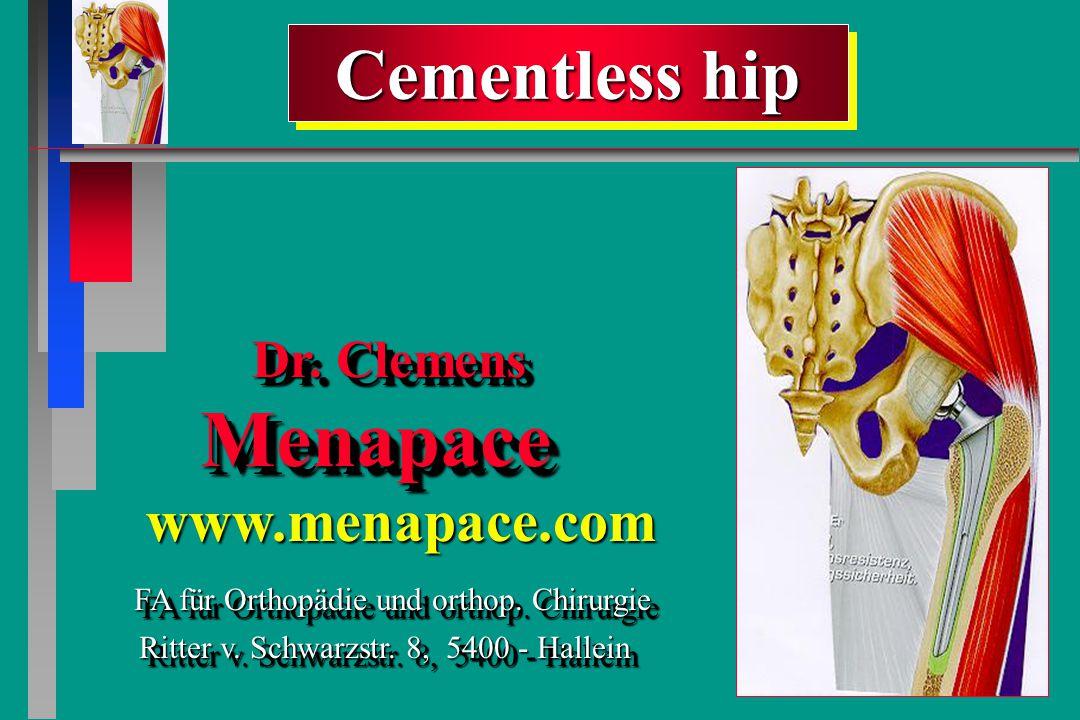 Cementless hip Cementless hip Dr. Clemens Menapace Dr.