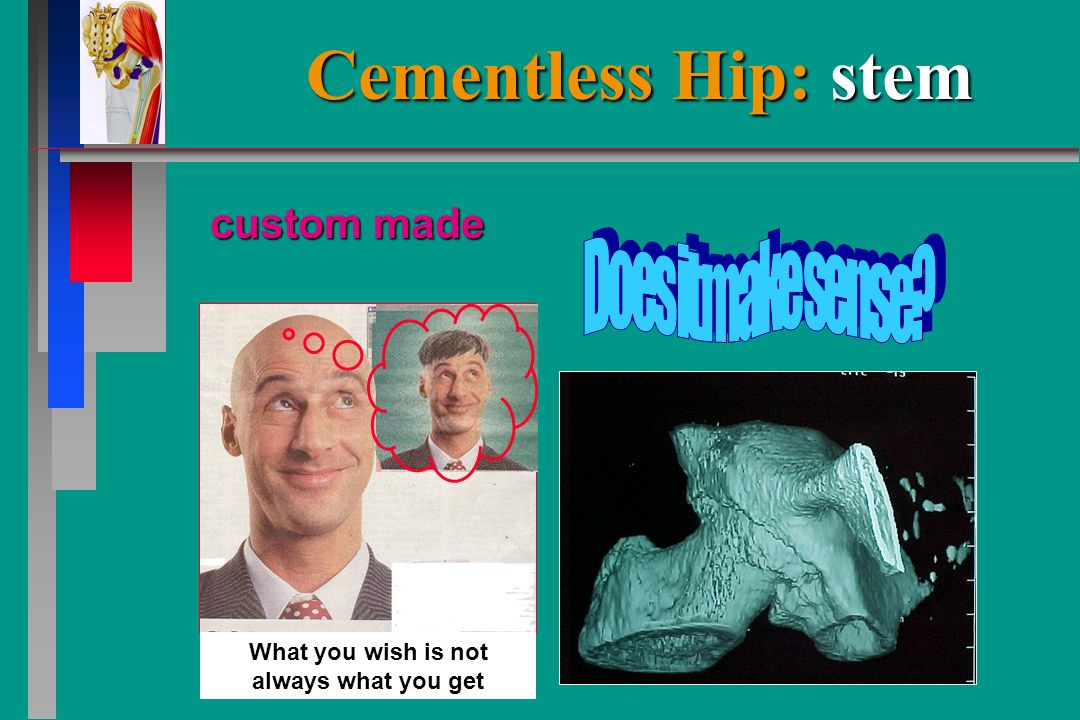 Cementless Hip: stem custom made What you wish is not always what you get