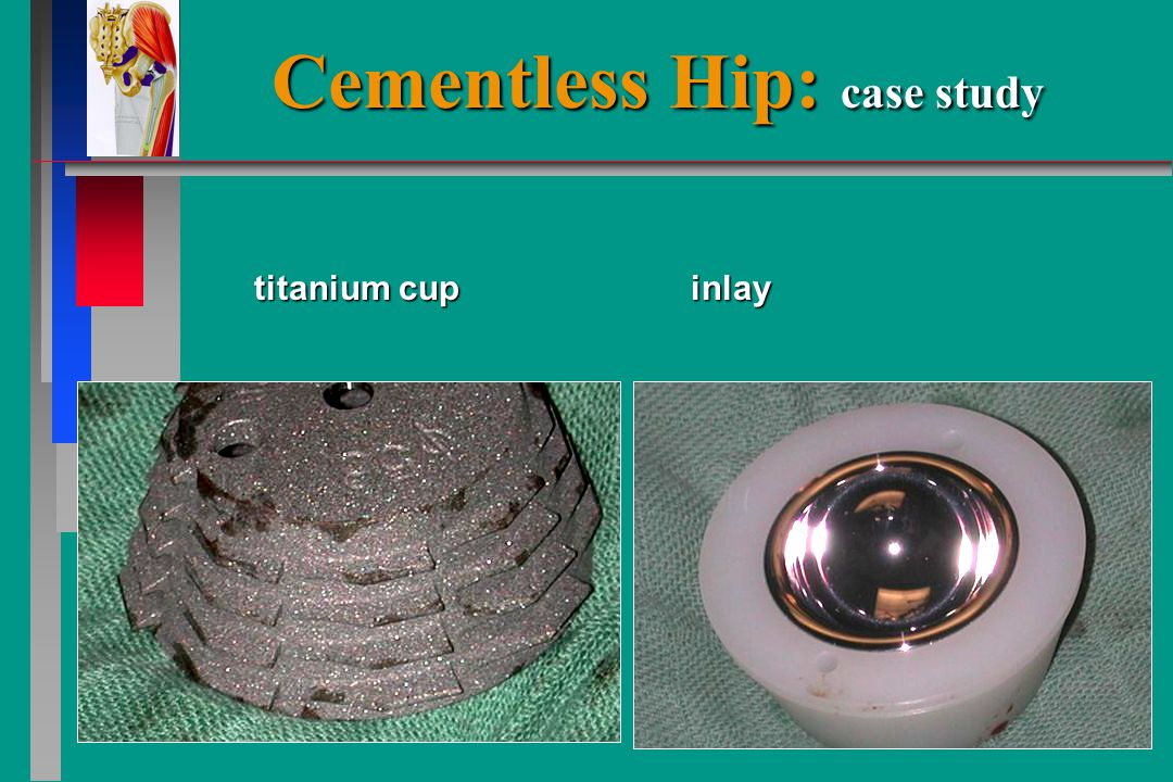 Cementless Hip: case study titanium cup inlay