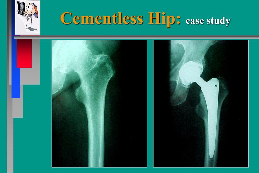 Cementless Hip: case study