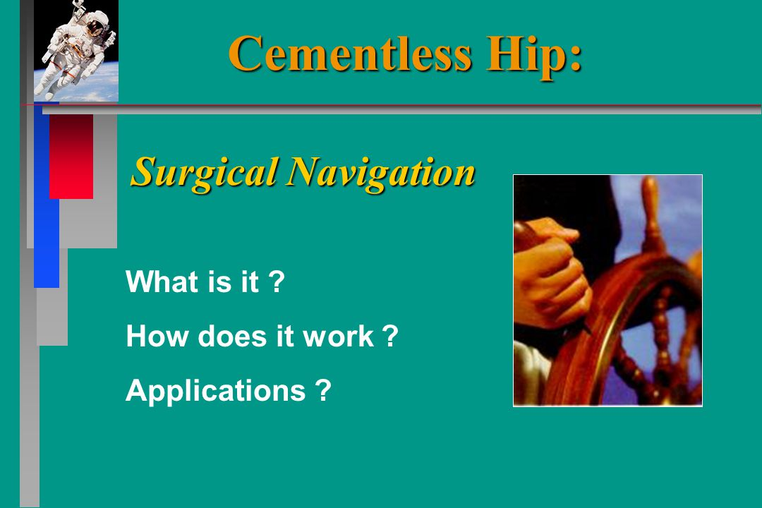 What is it How does it work Applications Surgical Navigation Cementless Hip: