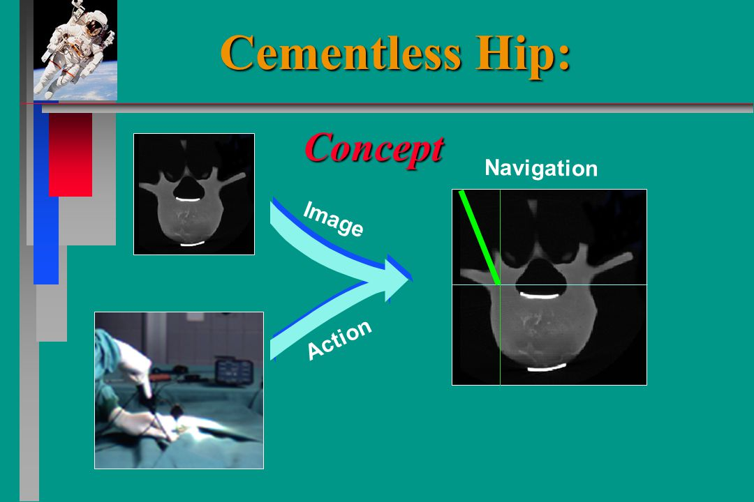Image Action Navigation Concept Cementless Hip:
